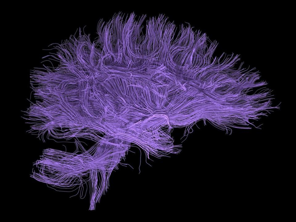 Ver Vol. 3 Núm. 1 (2020): Los misterios del cerebro